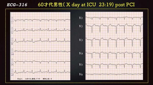 Ecg3165pci6web_1
