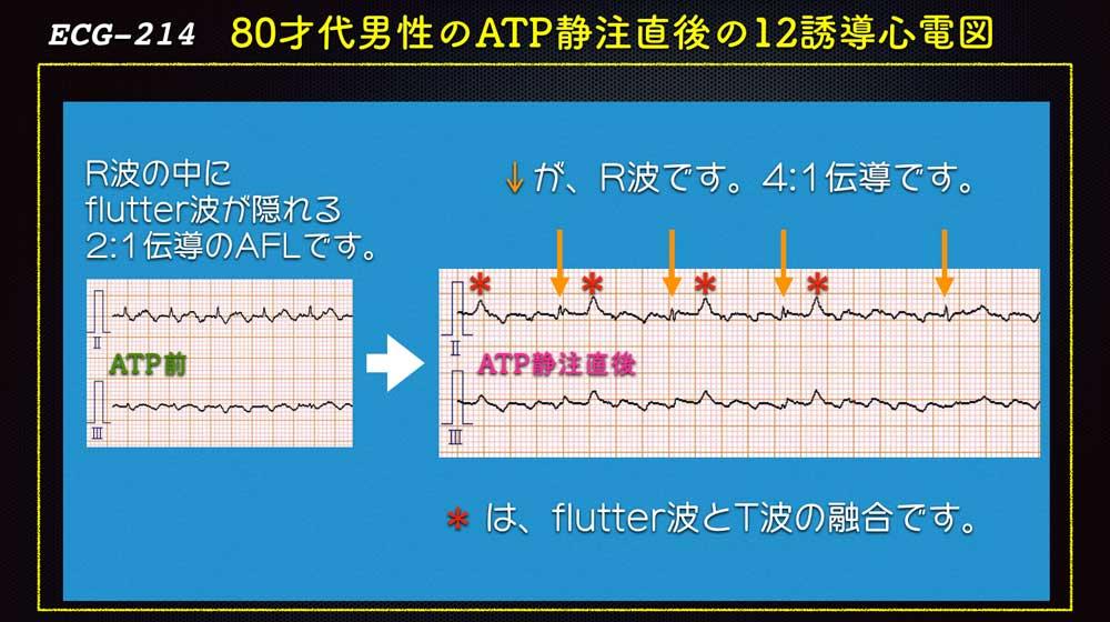 心電図 フラッター
