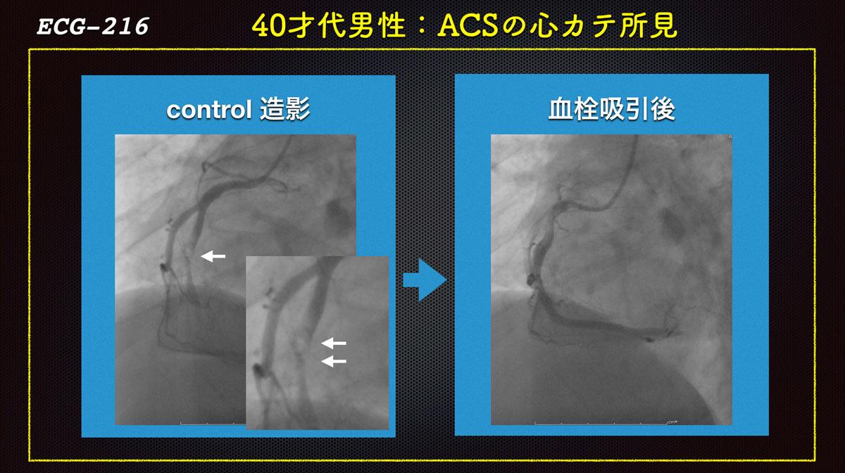 Ecg216acs_angioforweb