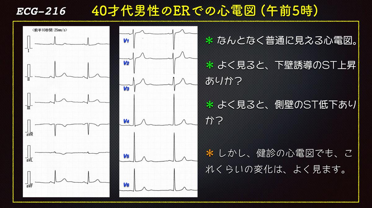 Ecg216erforweb_2