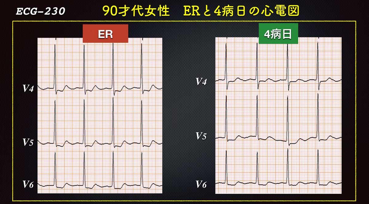 Ecg230v4forweb