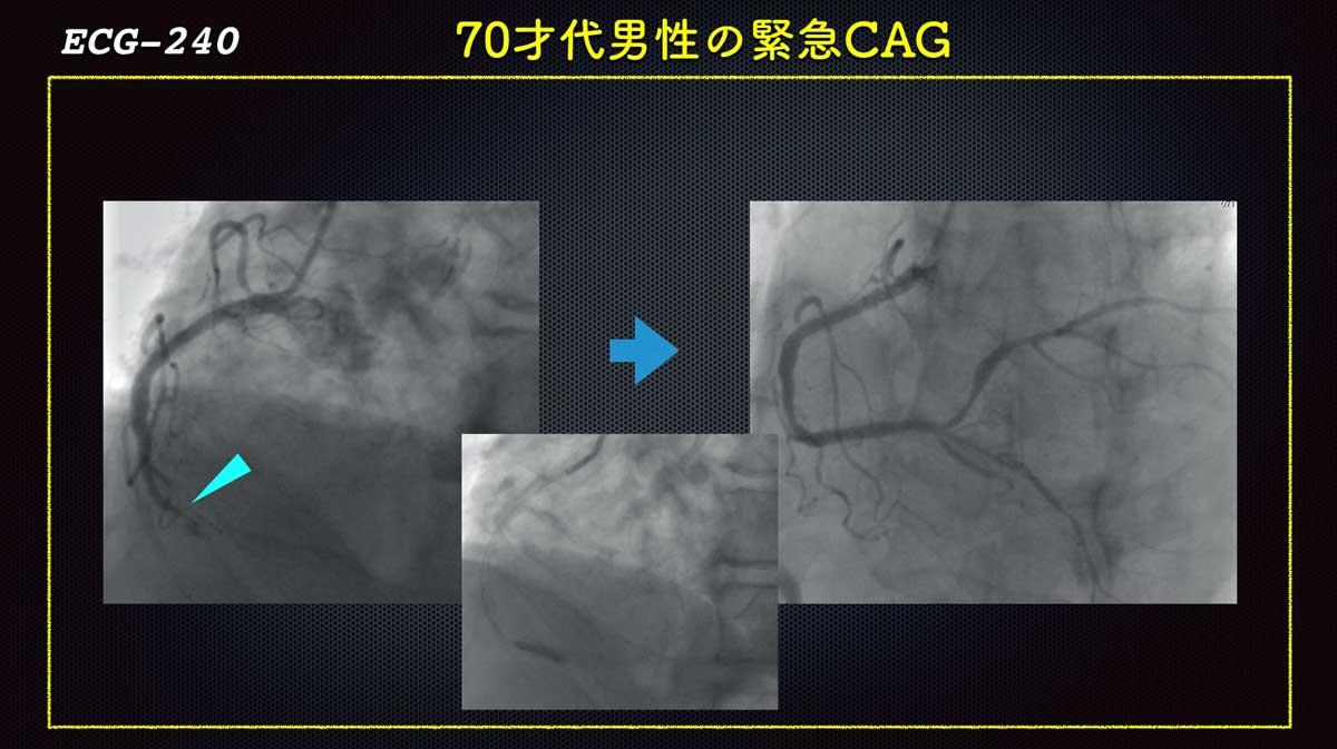 Ecg240acscag_rcaforweb