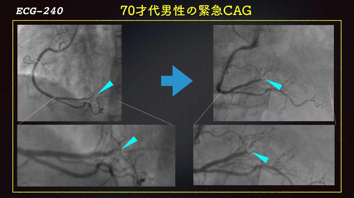 Ecg241cagrcaforweb