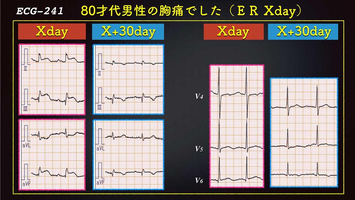 Ecg241forweb_3