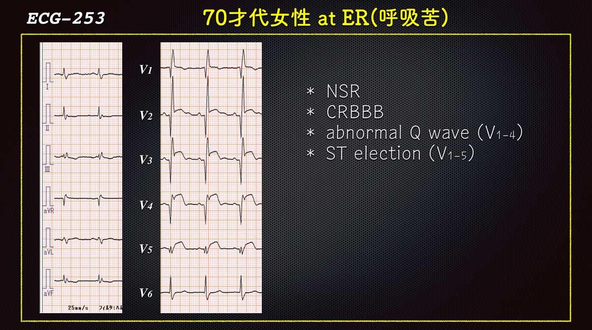 Ecg2533web
