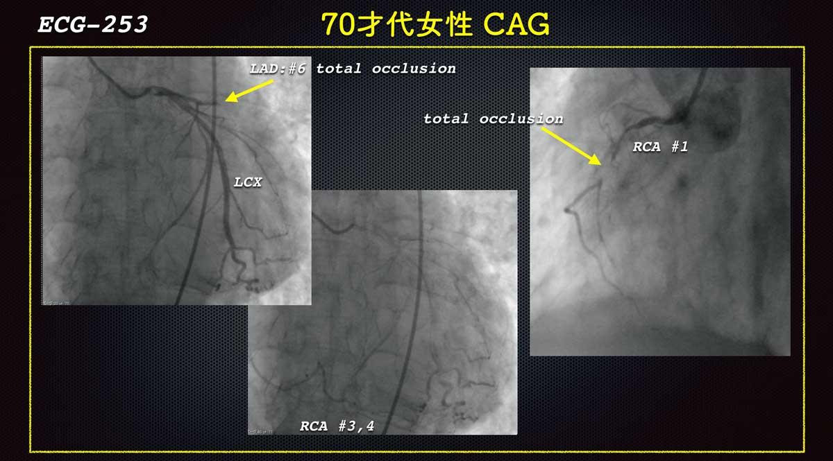 Ecg2534cagweb