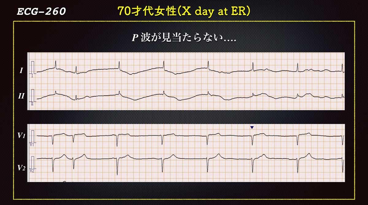Ecg2603pweb