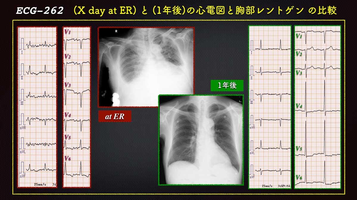 Ecg2626web