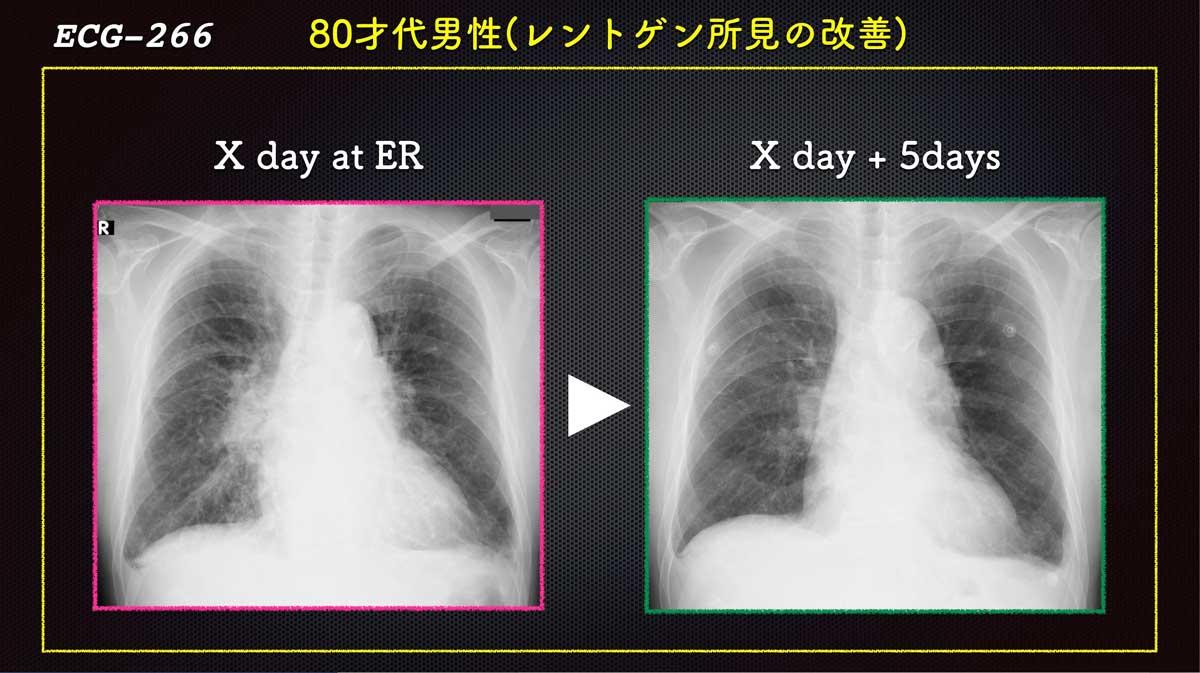 Ecg2664web