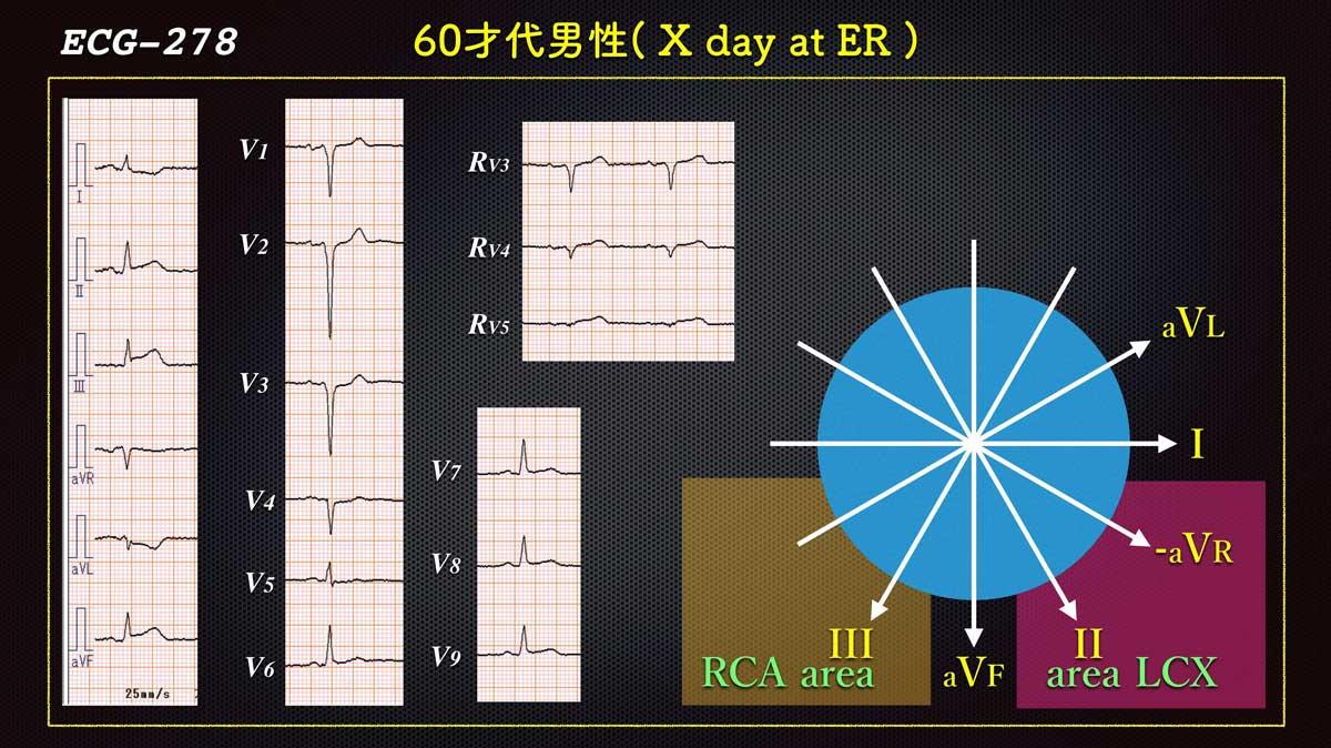 Ecg2784web