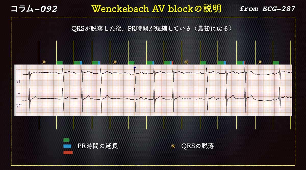 コラム 092type Ii Av Block Wenckebach型 Ii ブロック 22